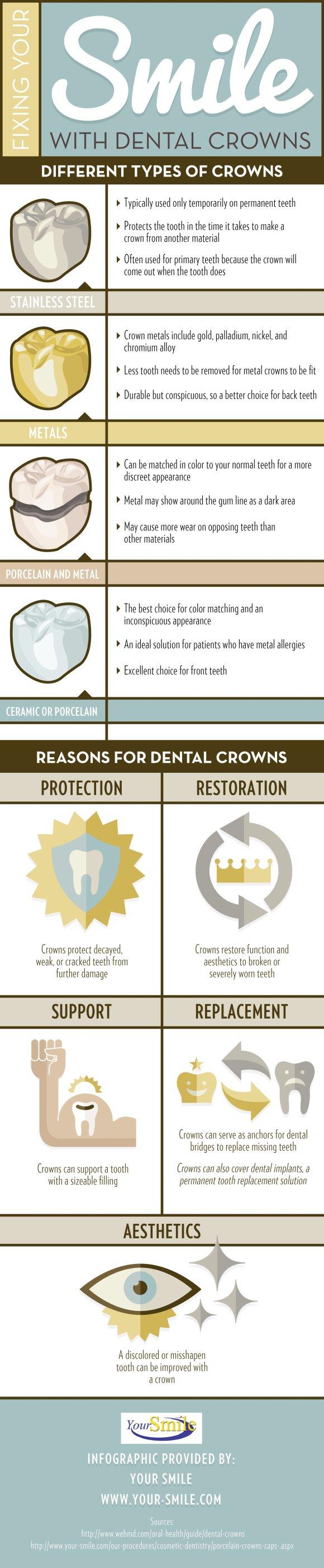 Dental Crowns near Bel Air